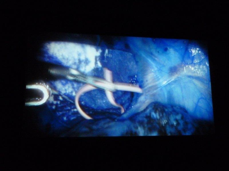 Film still showing endoscopic surgery